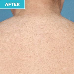 laser hair removal after photo 1