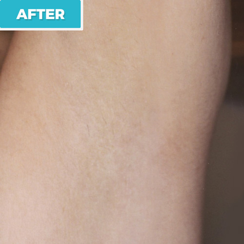 after laser hair removal photo 2
